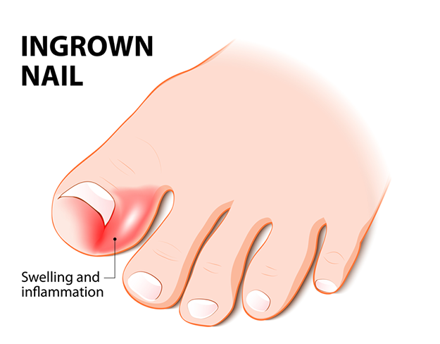 Is Your Toenail Hurting Then Check This Out