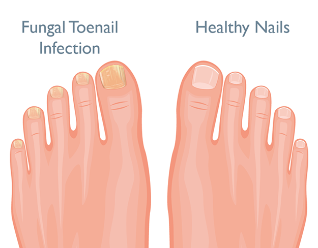 What Is Toenail Fungal Infection Foot Com